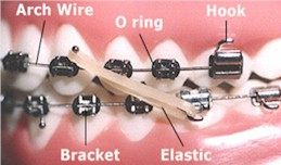 Orthodontic Chart